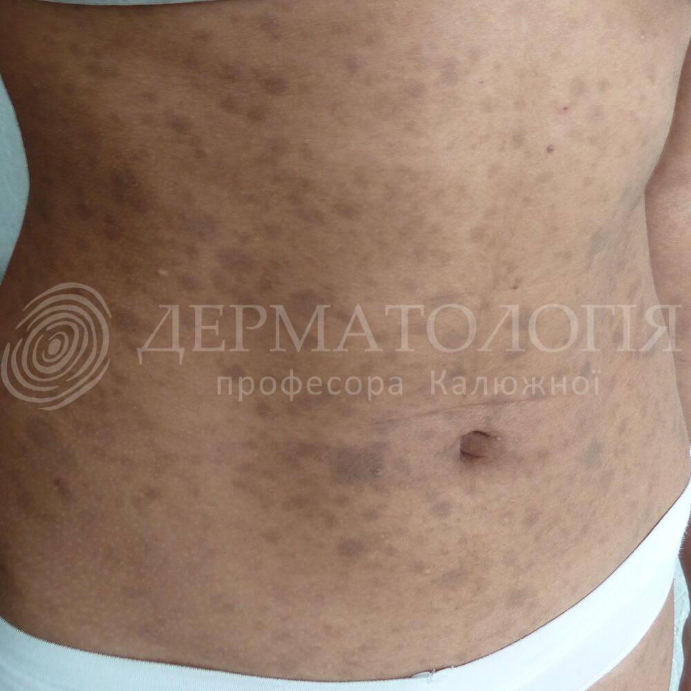 giperpigmentaciya
